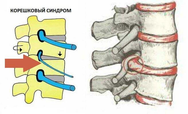 Позвоночные грыжи нижнего отдела позвоночника thumbnail
